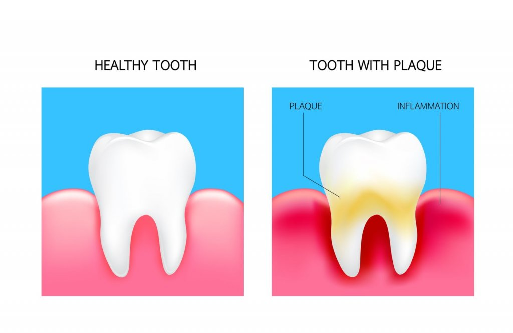 A diagram of a healthy tooth vs. one that has plaque build up
